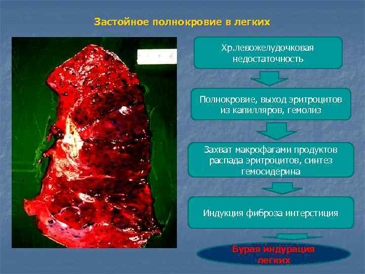 Застойное полнокровие в легких    Хр. левожелудочковая    недостаточность