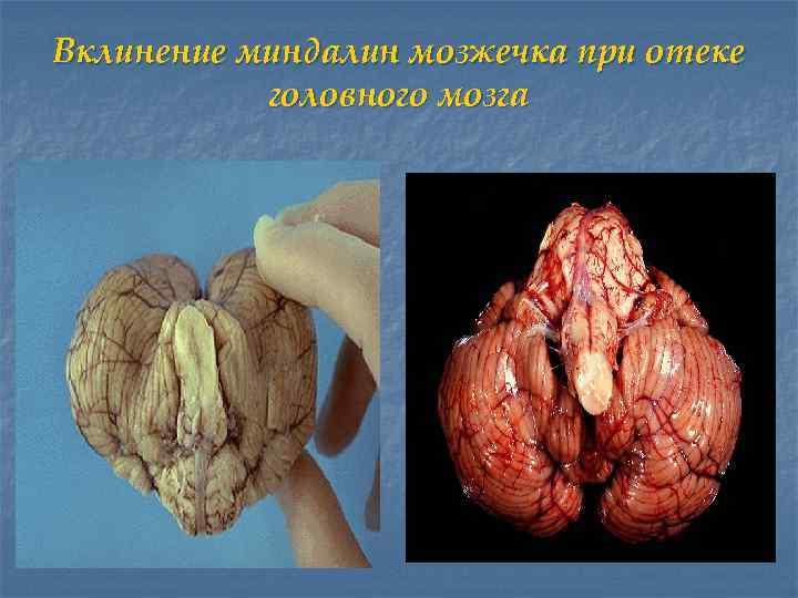 Вклинение миндалин мозжечка при отеке  головного мозга