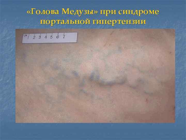 «Голова Медузы» при синдроме  портальной гипертензии
