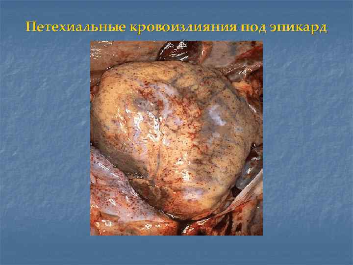 Петехиальные кровоизлияния под эпикард