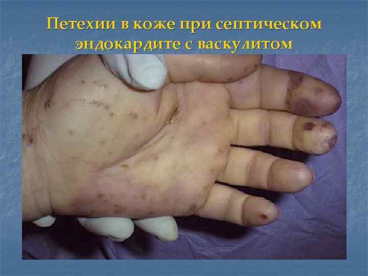 Петехии в коже при септическом  эндокардите с васкулитом