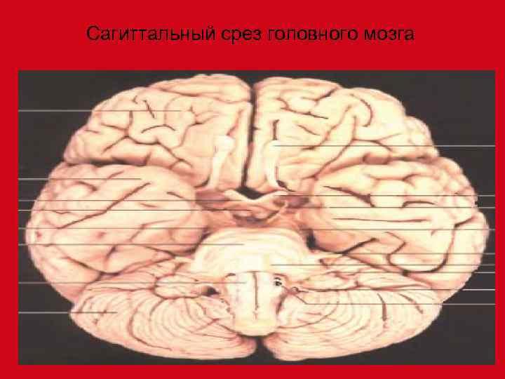Сагиттальный срез головного мозга