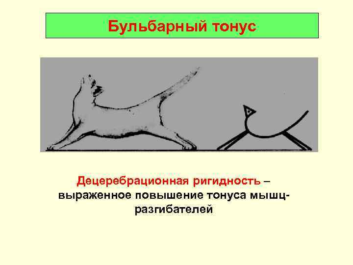 Бульбарный тонус  Децеребрационная ригидность – выраженное повышение тонуса мышц-  разгибателей