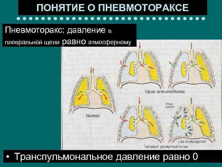ПОНЯТИЕ О ПНЕВМОТОРАКСЕ Пневмоторакс: давление в плевральной щели равно атмосферному • Транспульмональное