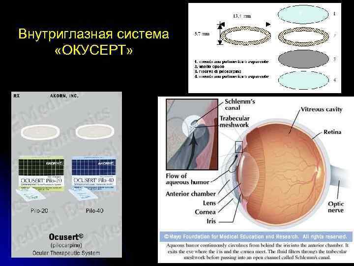 Внутриглазная система «ОКУСЕРТ»