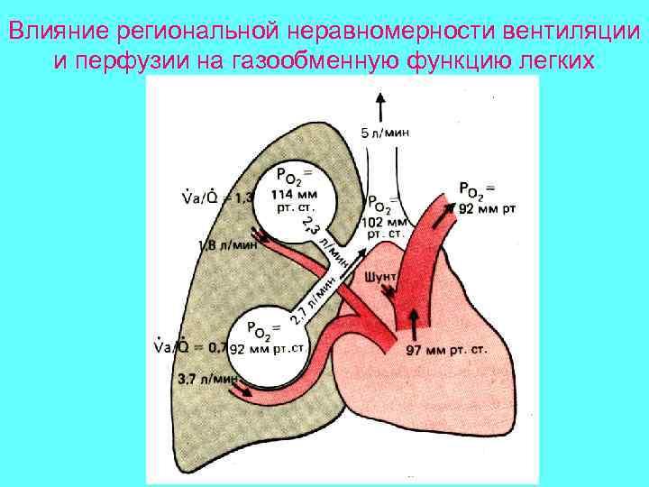 Влияние региональной неравномерности вентиляции  и перфузии на газообменную функцию легких