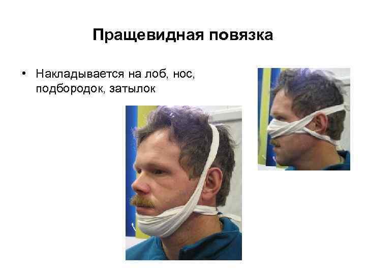 Пращевидная повязка  • Накладывается на лоб, нос,  подбородок, затылок