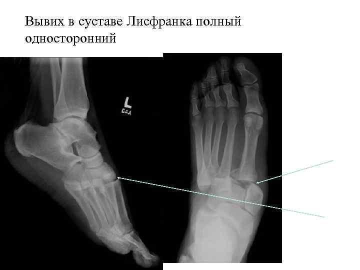 Лечение онемения рук и ног при остеохондрозе