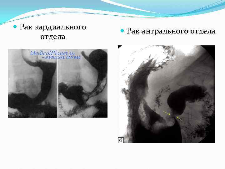 Рак кардиального    Рак антрального отдела