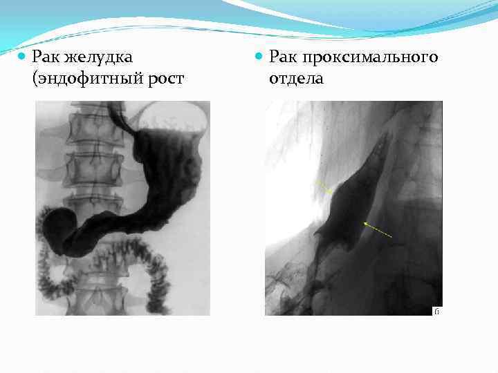 Рак желудка   Рак проксимального  (эндофитный рост отдела
