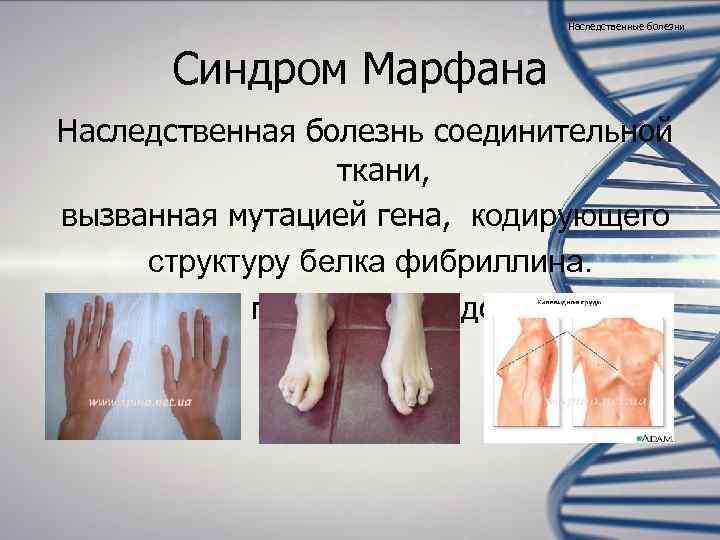 Наследственные болезни  Синдром Марфана Наследственная болезнь соединительной