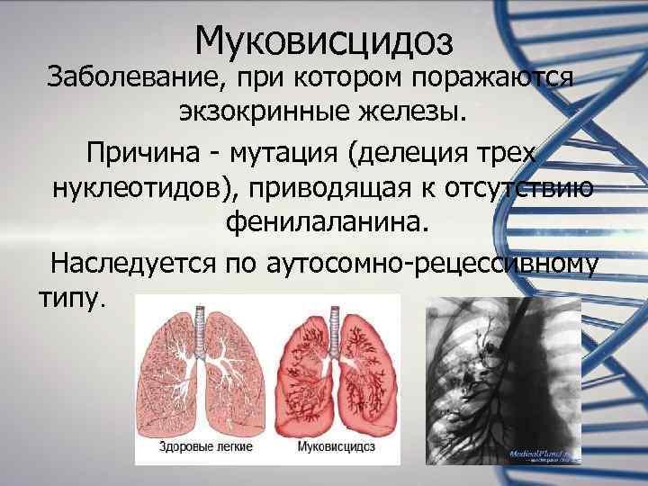 Муковисцидоз Заболевание, при котором поражаются   экзокринные железы. Причина -
