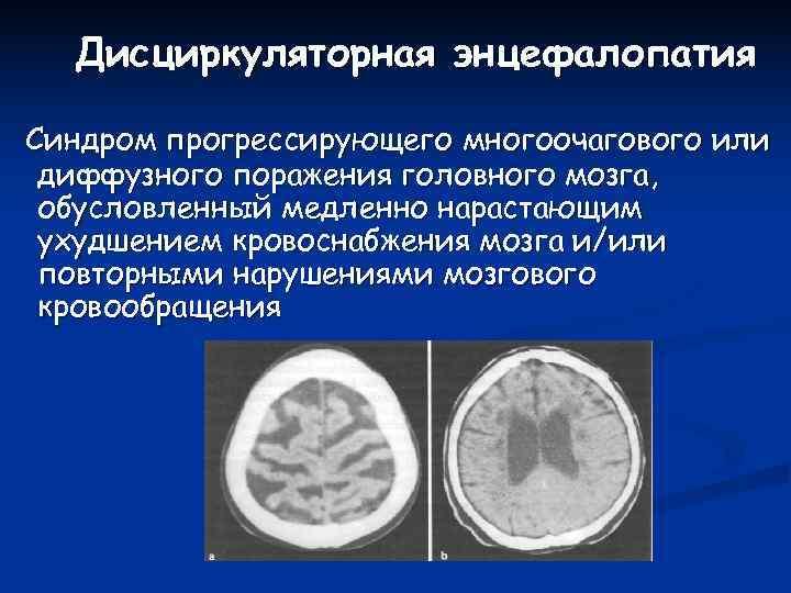 Диффузная энцефалопатия головного мозга