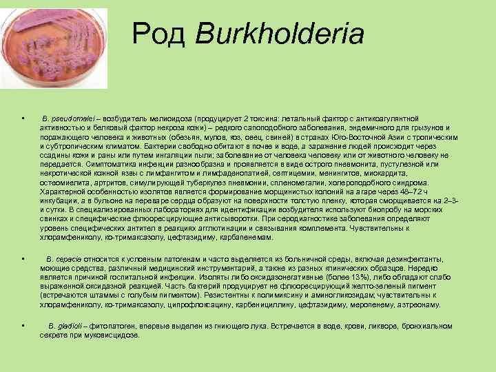 Род Burkholderia  • В. pseudomalei – возбудитель мелиоидоза
