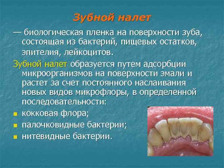 Зубной налет — биологическая пленка на поверхности зуба, состоящая из бактерий,