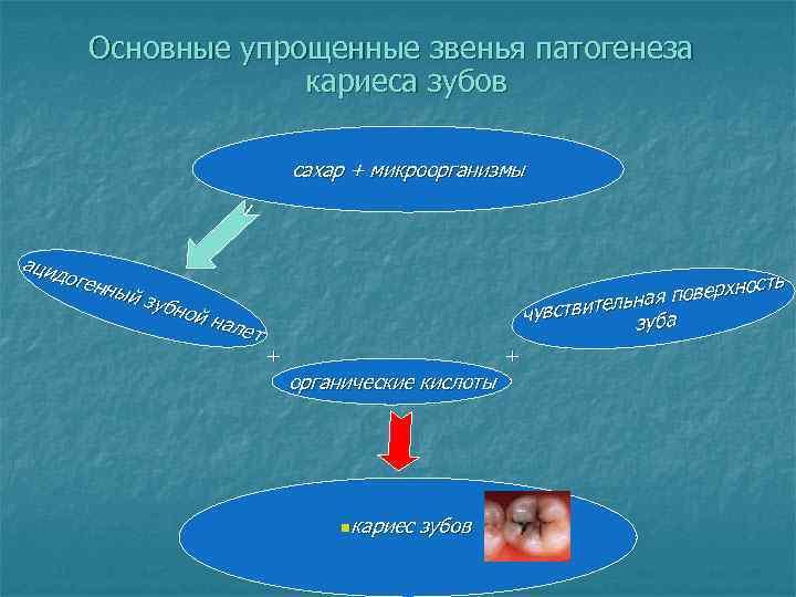 Основные упрощенные звенья патогенеза     кариеса зубов