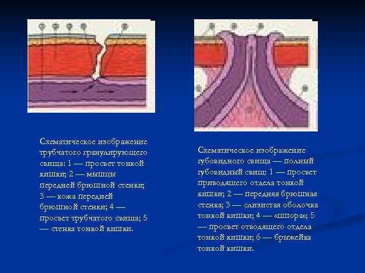 Схематическое изображение трубчатого гранулирующего Схематическое изображение свища: 1 — просвет тонкой губовидного свища —