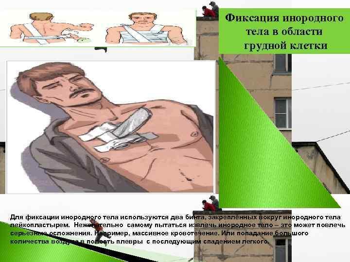 Фиксация инородного      тела