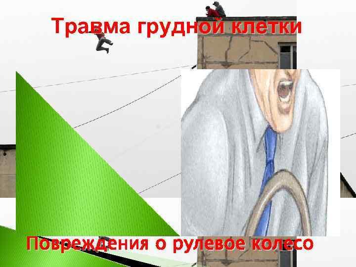 Травма грудной клетки Повреждения о рулевое колесо
