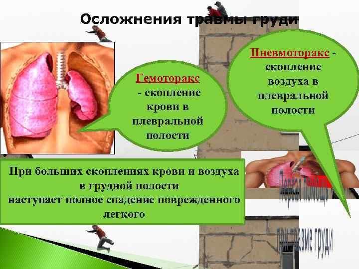 Осложнения травмы груди    Пневмоторакс -