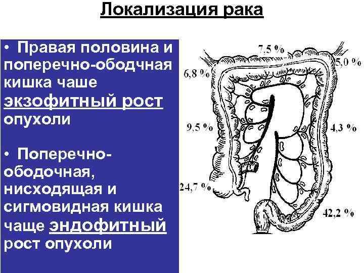 Локализация рака  • Правая половина и поперечно-ободчная кишка чаше экзофитный