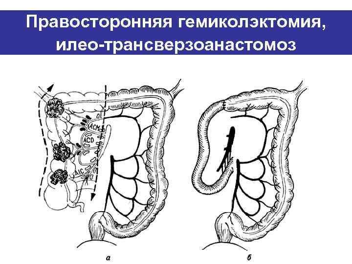 Правосторонняя гемиколэктомия, илео-трансверзоанастомоз
