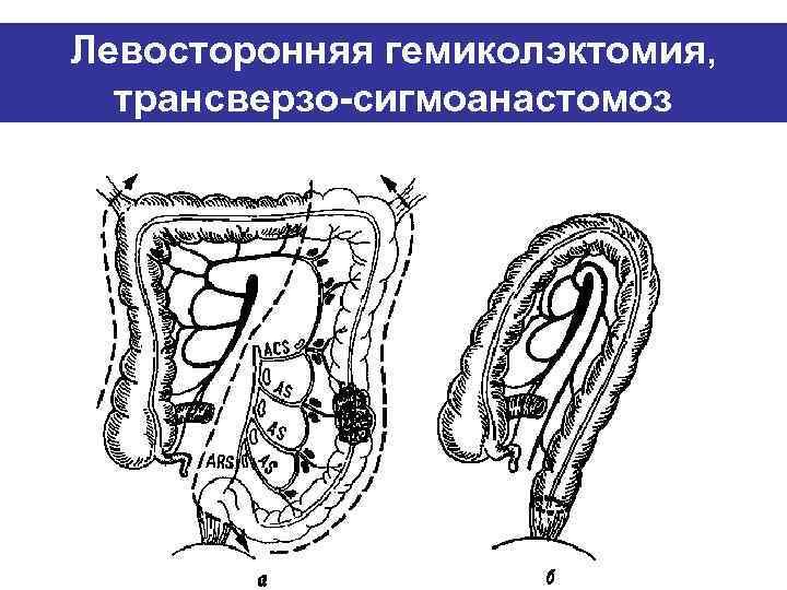 Левосторонняя гемиколэктомия,  трансверзо-сигмоанастомоз