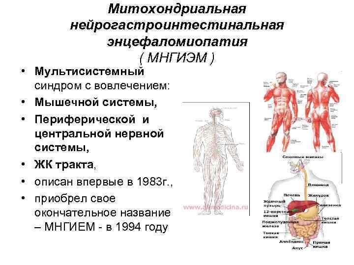 Митохондриальная   нейрогастроинтестинальная   энцефаломиопатия   ( МНГИЭМ