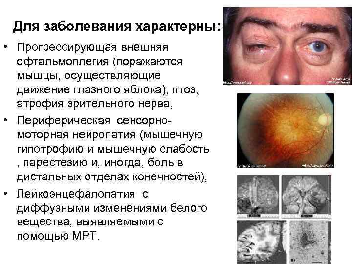 Для заболевания характерны:  • Прогрессирующая внешняя  офтальмоплегия (поражаются  мышцы, осуществляющие