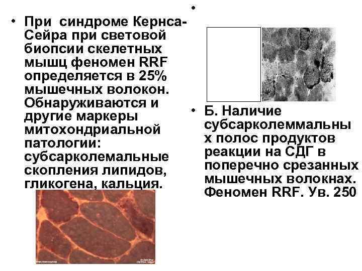 •  • При синдроме Кернса-  Сейра при световой