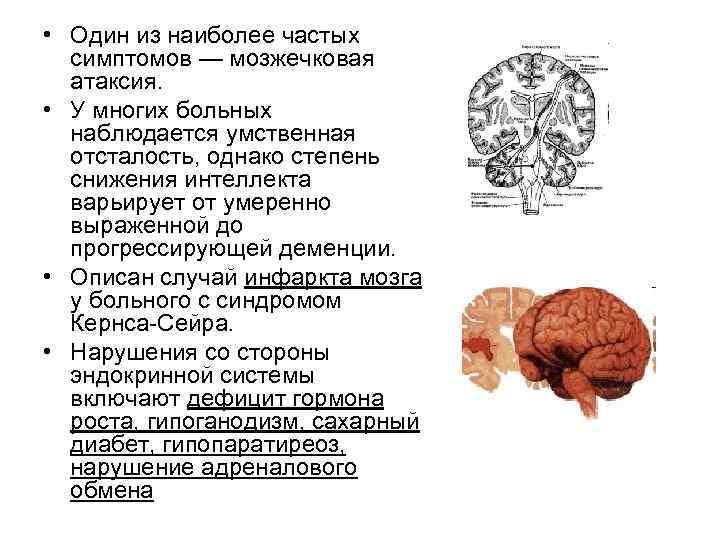 • Один из наиболее частых  симптомов — мозжечковая  атаксия.  •