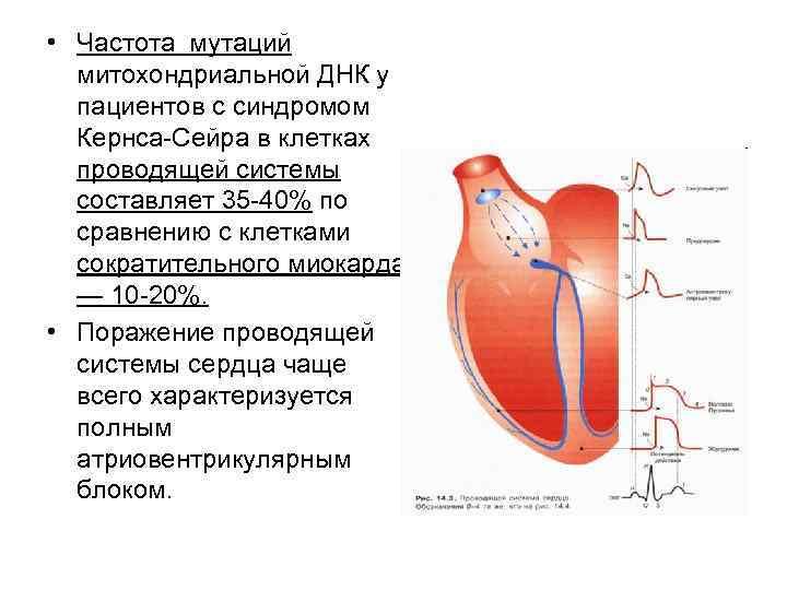 • Частота мутаций  митохондриальной ДНК у  пациентов с синдромом  Кернса-Сейра