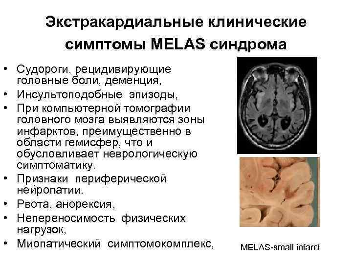 Экстракардиальные клинические   симптомы MELAS синдрома • Судороги, рецидивирующие  головные боли,