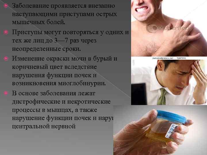 Заболевание проявляется внезапно  наступающими приступами острых  мышечных болей.  Приступы могут