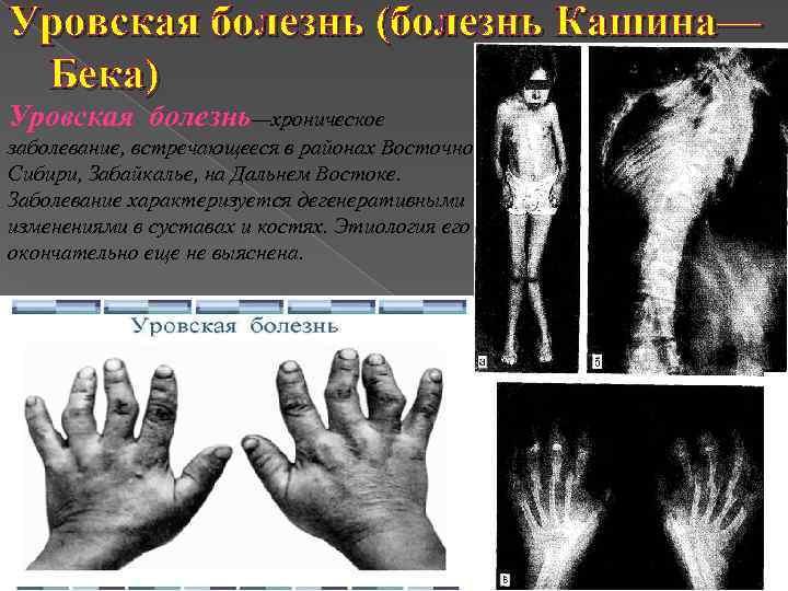 Уровская болезнь (болезнь Кашина— Бека) Уровская болезнь—хроническое заболевание, встречающееся в районах Восточной Сибири, Забайкалье,