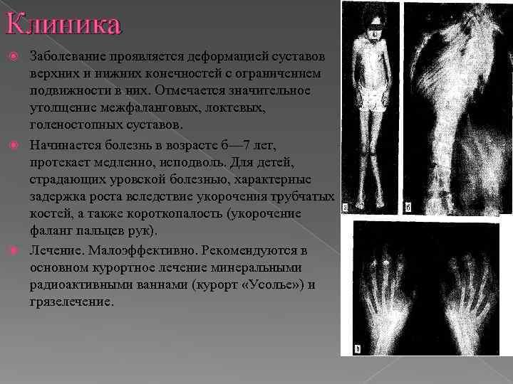 Клиника  Заболевание проявляется деформацией суставов  верхних и нижних конечностей с ограничением