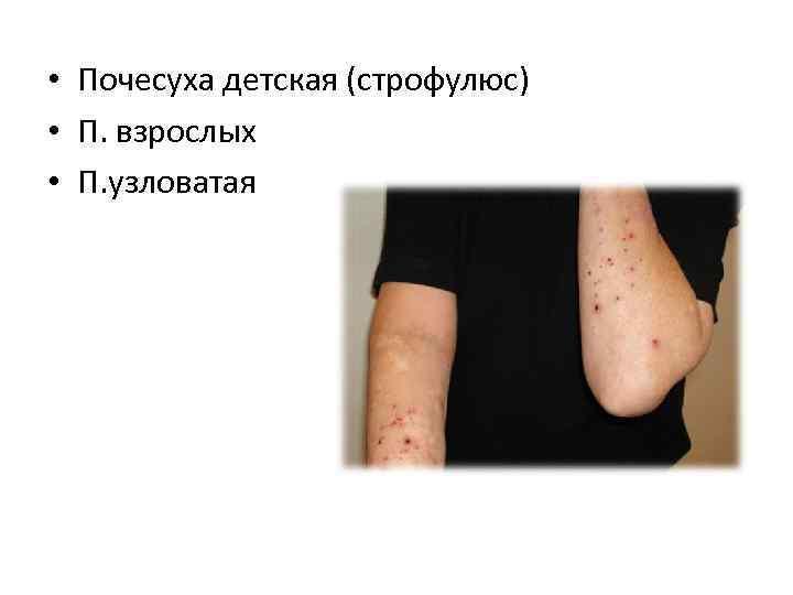 • Почесуха детская (строфулюс) • П. взрослых • П. узловатая