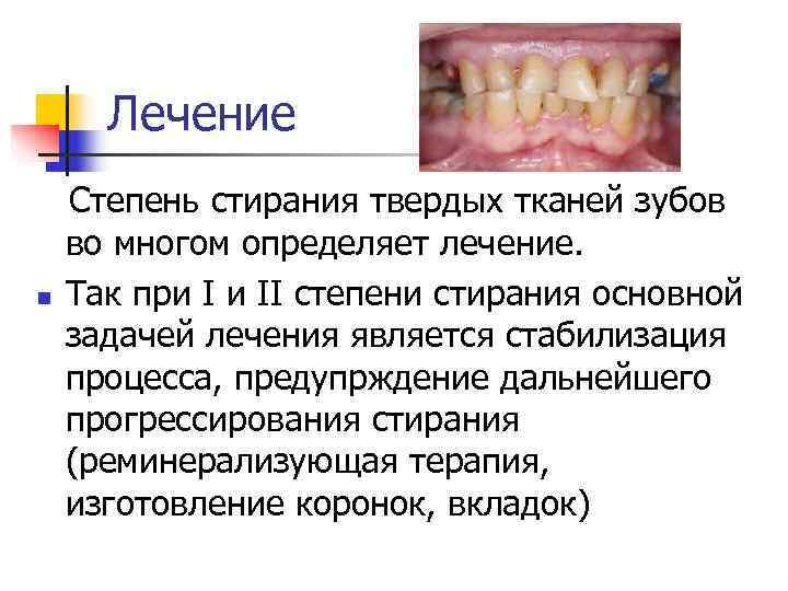 Лечение  Степень стирания твердых тканей зубов во многом определяет лечение.