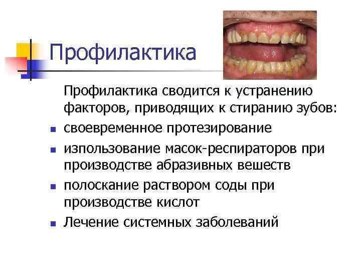 Профилактика сводится к устранению факторов, приводящих к стиранию зубов:  n своевременное протезирование n