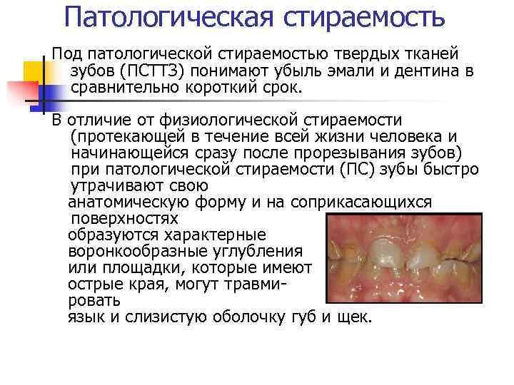 Патологическая стираемость Под патологической стираемостью твердых тканей  зубов (ПСТТЗ) понимают убыль эмали