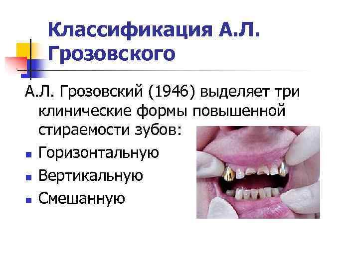 Классификация А. Л.  Грозовского А. Л. Грозовский (1946) выделяет три  клинические