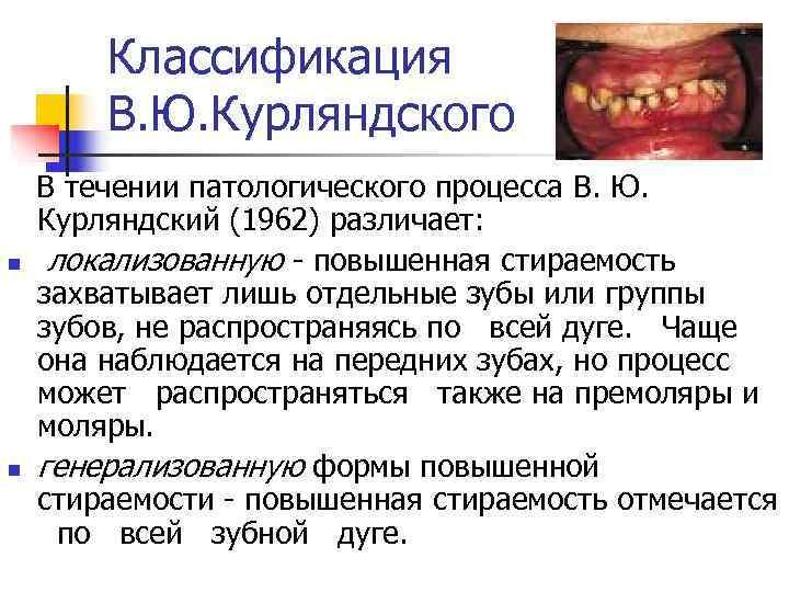 Классификация  В. Ю. Курляндского  В течении патологического процесса В. Ю. Курляндский