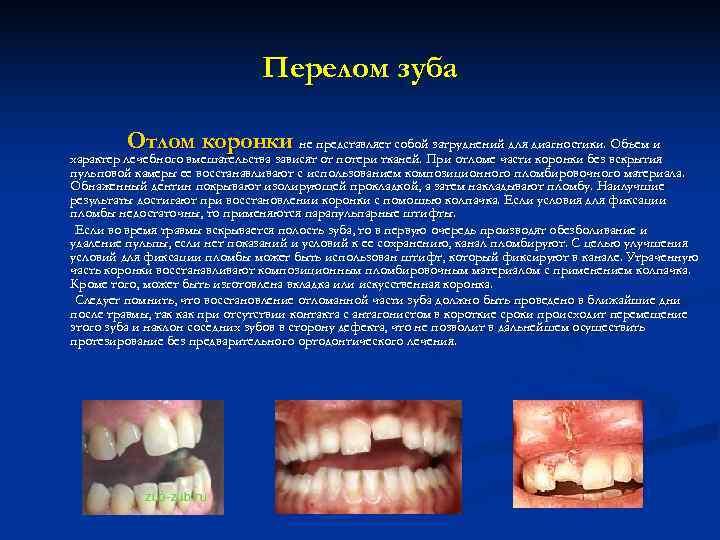 Перелом зуба  Отлом коронки не представляет собой затруднений