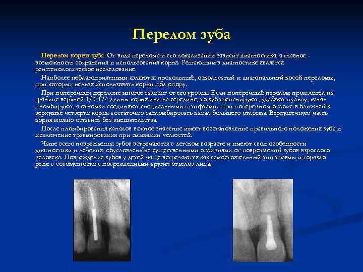 Перелом зуба  Перелом корня зуба. От вида перелома