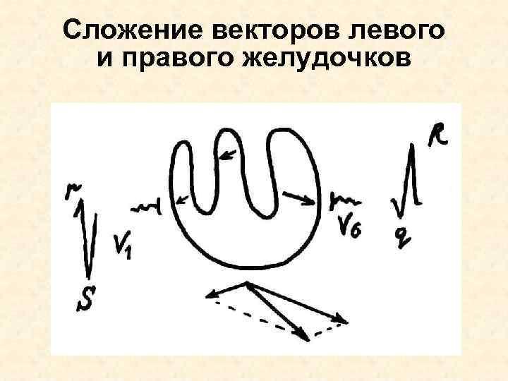 Сложение векторов левого  и правого желудочков