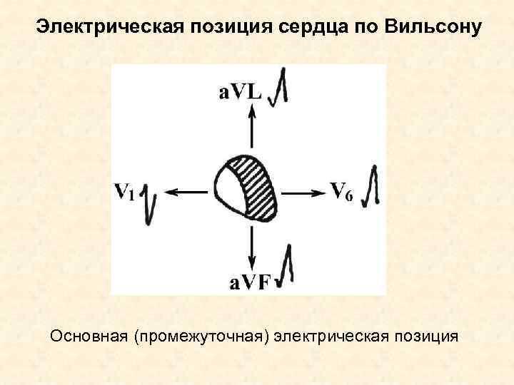 Электрическая позиция сердца по Вильсону Основная (промежуточная) электрическая позиция