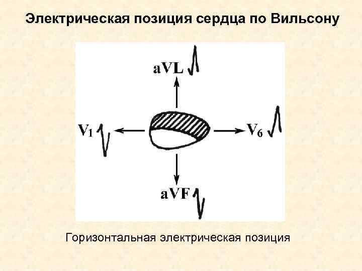 Электрическая позиция сердца по Вильсону   Горизонтальная электрическая позиция