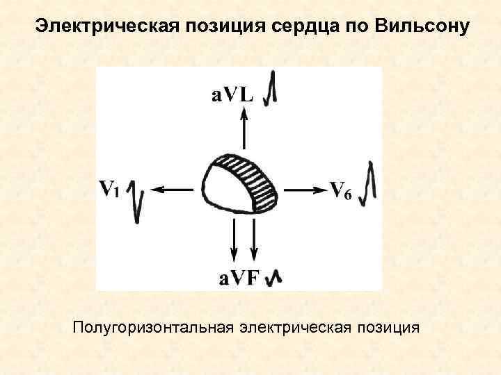 Электрическая позиция сердца по Вильсону  Полугоризонтальная электрическая позиция
