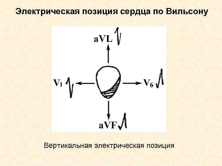 Электрическая позиция сердца по Вильсону   Вертикальная электрическая позиция