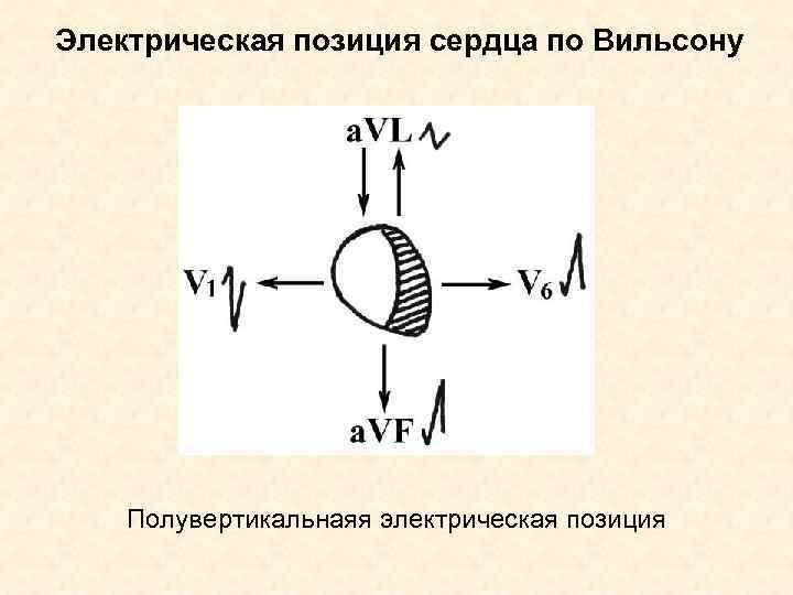 Электрическая позиция сердца по Вильсону   Полувертикальнаяя электрическая позиция
